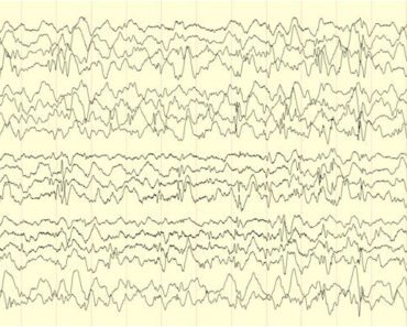 EEG (Elektroensefalografi)