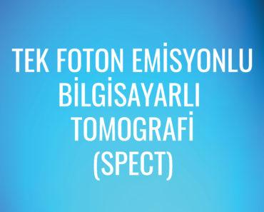 Tek Foton Emisyonlu Bilgisayarlı Tomografi (SPECT)